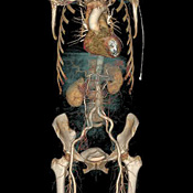 CT scans like this show arteries, organs, and bones. To help pick the right radiology test, doctors at Beth Israel hospital use decision-support software.