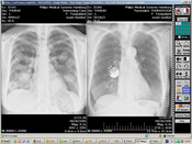 A screenshot of the x-ray images which will be viewed and diagnosed by the independent radiologists in Argentina, Tanzania and Kenya.